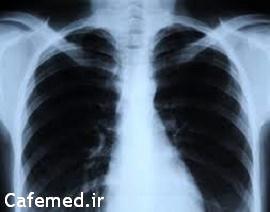 خطر تاثیر اشعه ایکس روی قلب