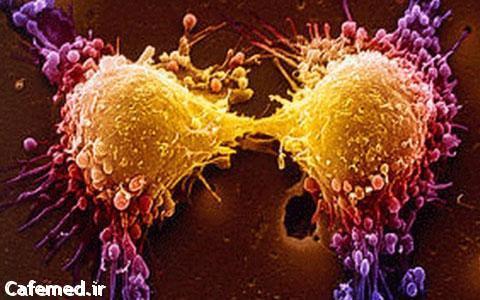 سرطان های شایع بانوان
