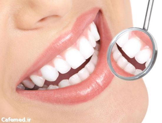حفظ سفیدی دندانها با این غذاها