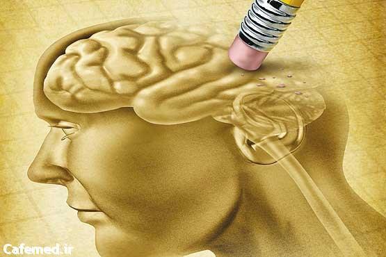 تاثیر درمانی مفنامیک اسید بر آلزایمر
