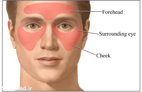 ۱۰ درمان طبیعی تسکیندهنده درد سینوس