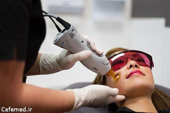 عوارض لیزر درمانی
