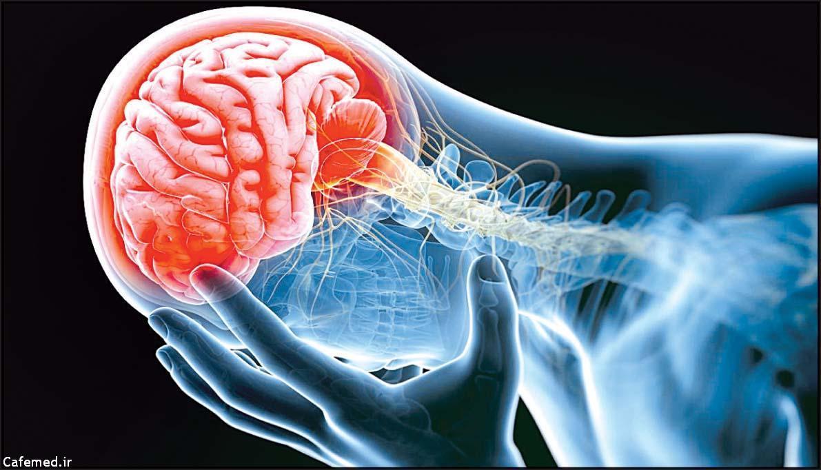 ۵ راه فرار از خطر سکته مغزی