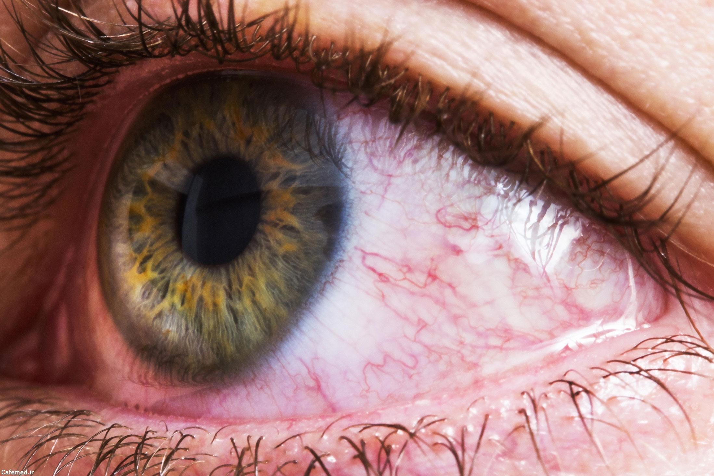 دلایل قرمزی چشم و راه حل آن