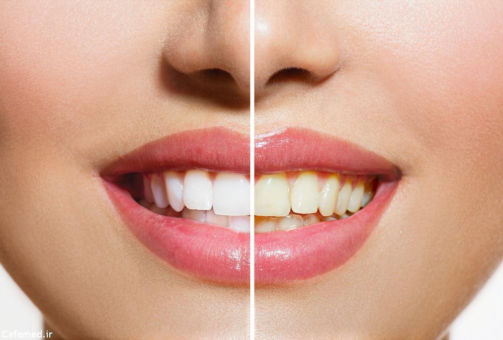 راههای خانگی از بین بردن جرم دندان