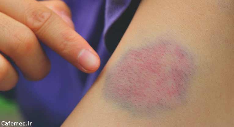 نشانه های وجود لخته خون در پا را جدی بگیرید
