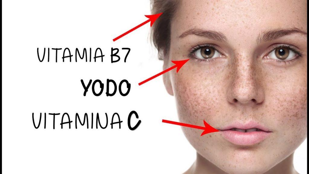 نشانه های کمبود ویتامین روی پوست صورت
